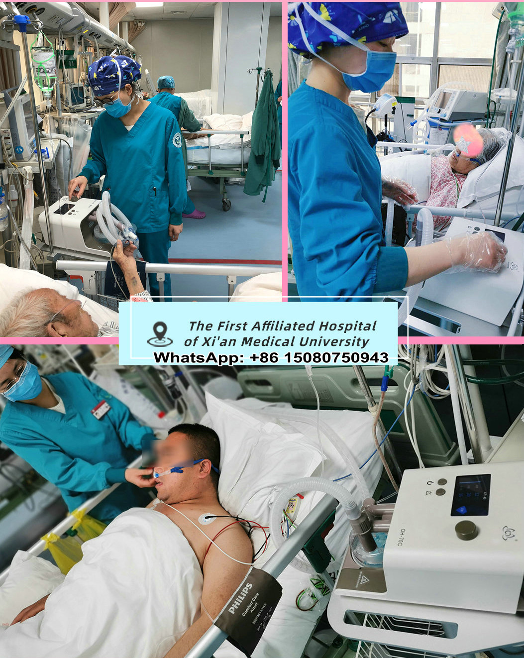 application of HFNC Heated humidified high flow nasal cannula oxygen ventilator